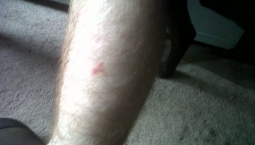 Triangle mark on leg