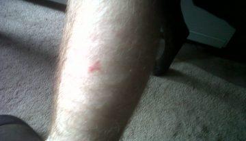 Triangle mark on leg
